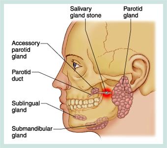 toxine botulique glandes salivaires